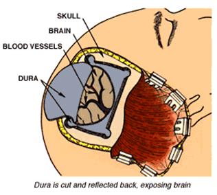 Tumor Otak   Pengobatan Tumor Otak